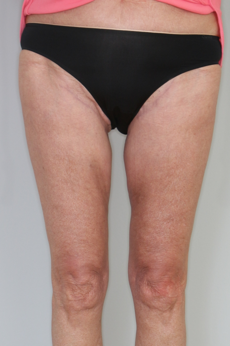 Thigh-Lift-Pat-3