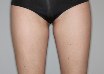 Thigh-Lift-Pat-1