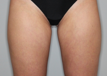 Thigh-Lift-Pat-2