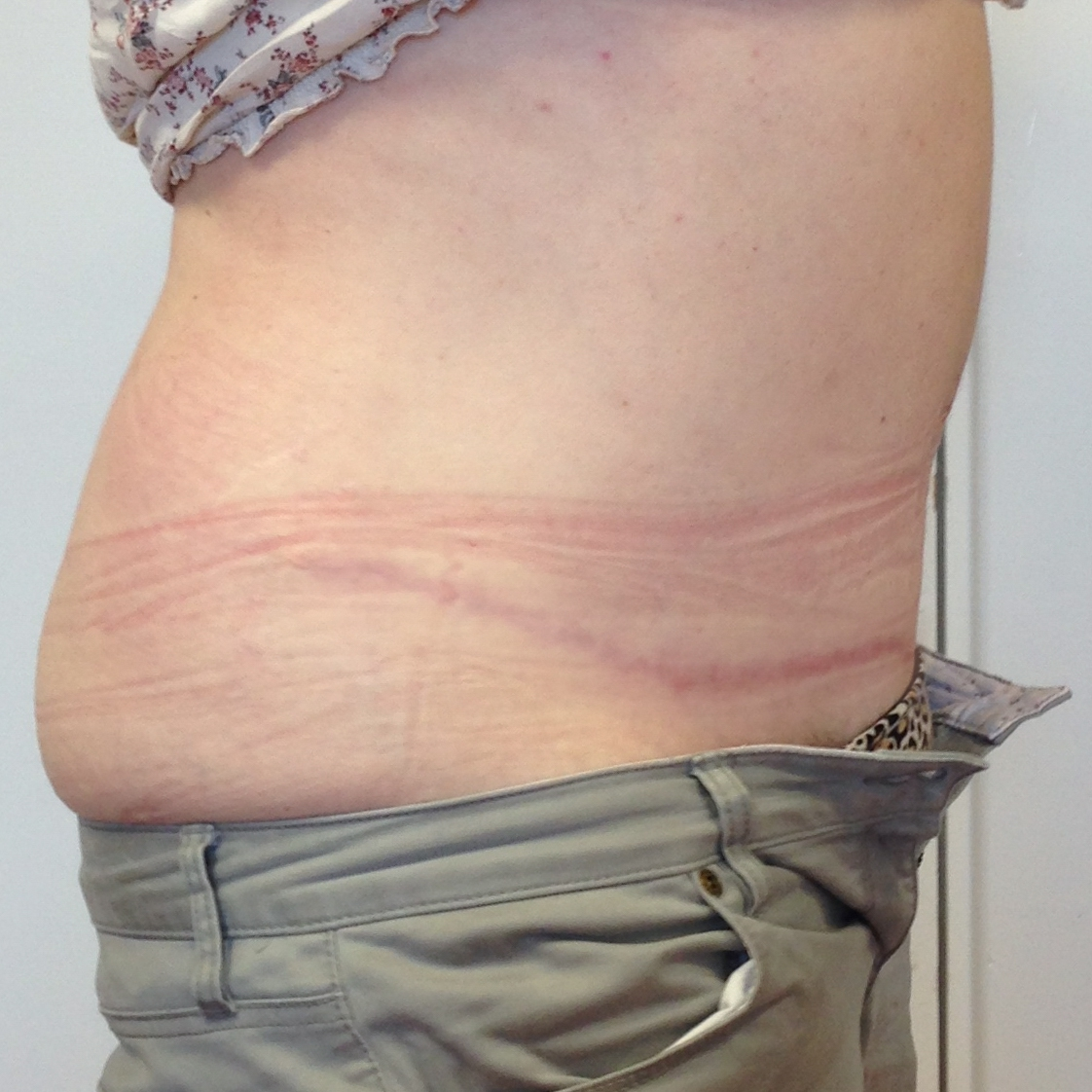 Abdominoplasty-Pat-3-side